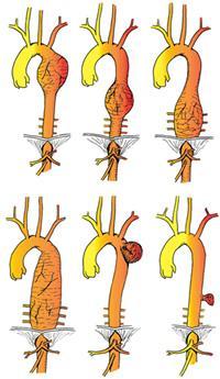 Aneurisma dell'aorta
