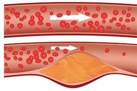 Ipercolesterolemia