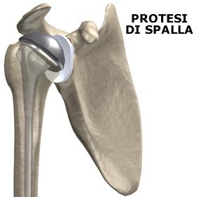Artrosi della spalla (scapolo omerale)