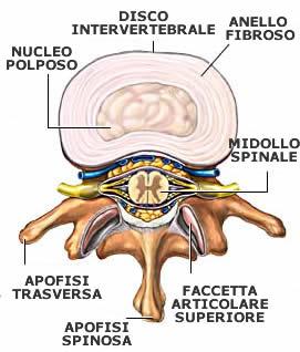 Se a un myeloma i danni posteriori
