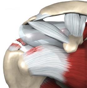 Periartrite della spalla